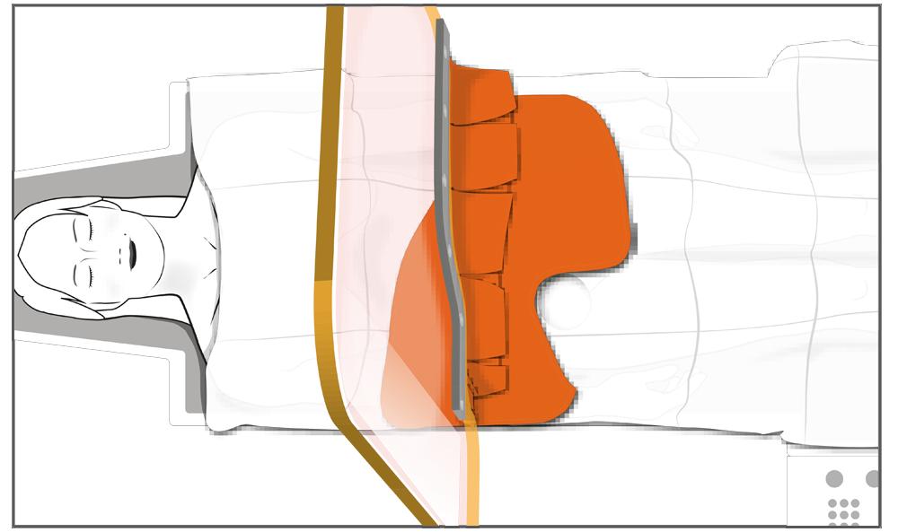 Anwendung des Mehrweg-Strahlenschutz-Drapes für den femoralen Zugang in Verbindung mit der Strahlenschutzscheibe mit Lamellenbehang (Baureihe ST-FS5AMM).